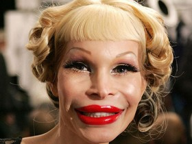 plastic_surgery_fails_1